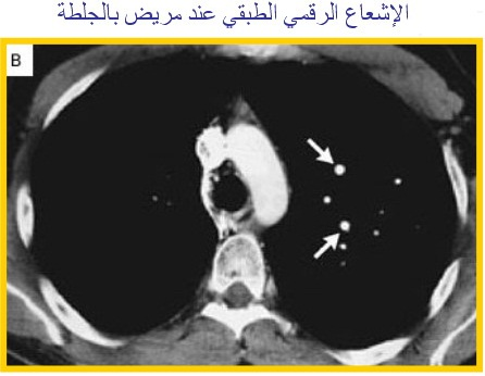 PUMONARY EMBOLISM 4