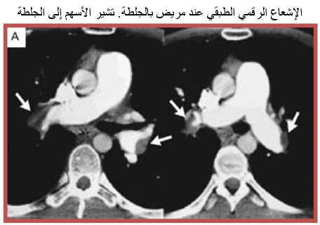 PUMONARY EMBOLISM 6