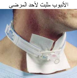 Tracheostomy 2
