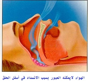 Intra-Oral Devices for Sleep Apnea 2