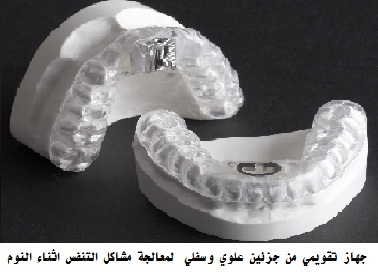 Intra-Oral Devices for Sleep Apnea 4