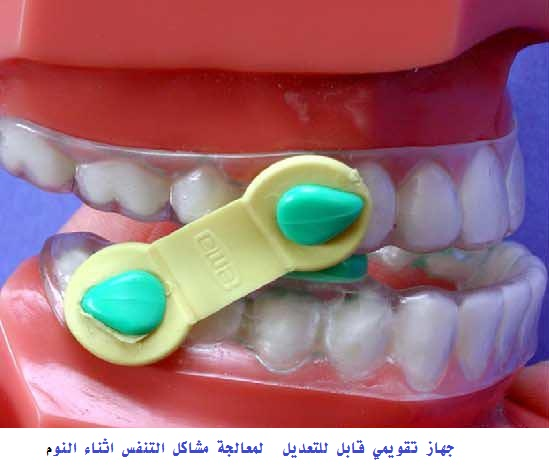 Intra-Oral Devices for Sleep Apnea 5