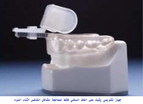 Intra-Oral Devices for Sleep Apnea 6
